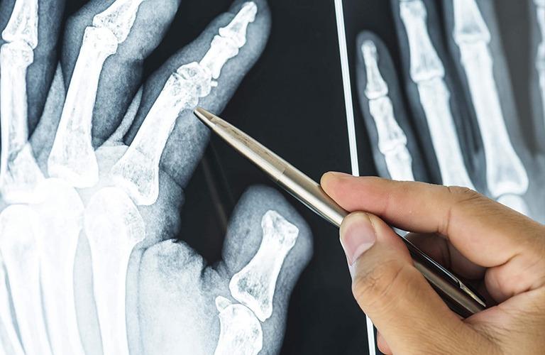 sp-tendon-problems